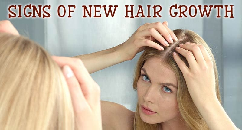 Hair Growth Supplements Can Work – Know about the working
